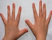 Обкусывание ногтей