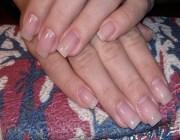 Ускорение роста ногтей
