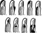 Подногтевой и околоногтевой панариций: симтомы и лечение