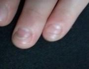Ногти слоятся у ребенка