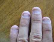 Слазят ногти у ребенка