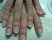 Ногти после снятия геля