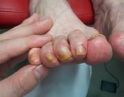 Толстый ноготь на ноге лечение