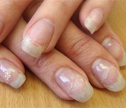 отслаиваются ногти нарощенные гелем