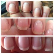 IBX nail system