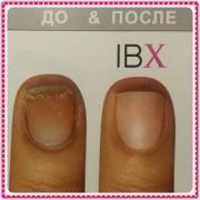 до и после ibx