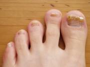 заболевание паразитическим грибком