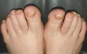 зараженные ногти