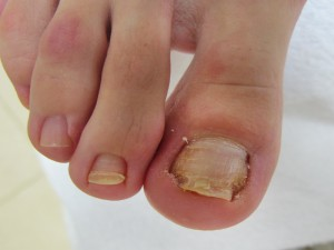 Нарыв на ноге около ногтя