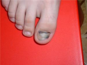 Почернение ногтей на ногах