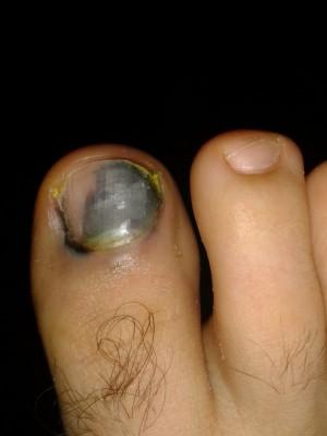 Потемнение ногтей на ногах