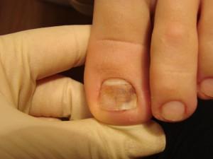 Потемнение ногтя большого пальца ноги