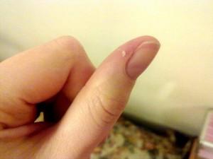Воспаление около ногтя на ноге