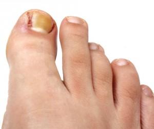 Воспаление вокруг ногтя на руке