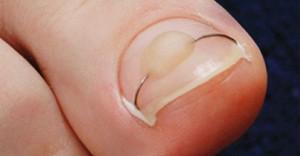 Лечение вросшего ногтя без операции