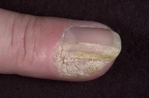 наросты под ногтями на руках