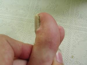Черные точки под ногтями