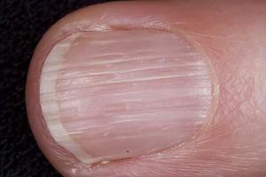 Ямки на ногтевой пластине