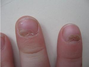Ямки на ногтях рук