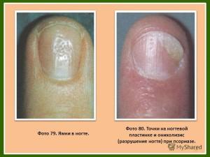 На ногтях появились вмятины