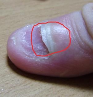 Отслаивание ногтей на руках