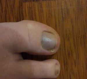 Посинели ногти
