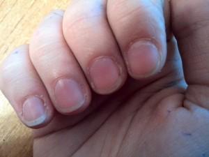 Сухая кожа вокруг ногтей
