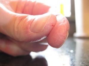 Трещины вокруг ногтей