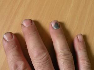 посинели ногти на руках