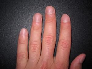 Бугристые ногти