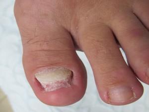 Деформация ногтей на ногах