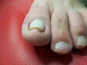Искривление ногтей на ногах