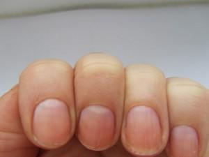 Неровные ногти