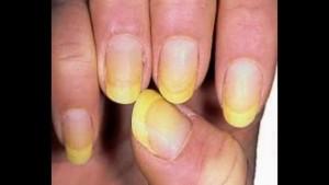 Определение болезни по ногтям рук