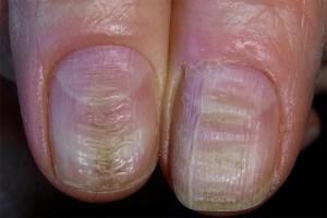Поперечные борозды на ногтях рук