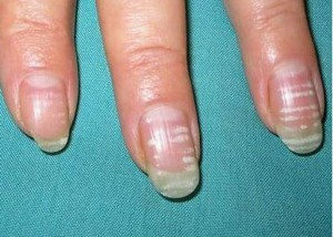 Поперечные полосы на ногтях рук