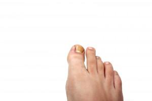 Проблема вросшего ногтя на большом пальце ноги