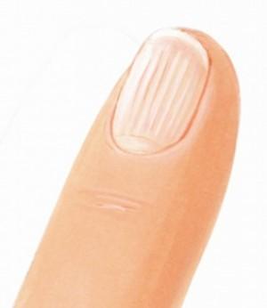 Продольные бороздки на ногтях рук