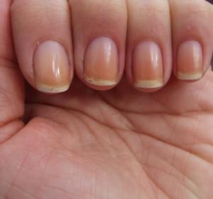 Состояние ногтей при болезни