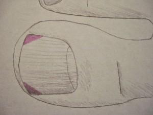 Врастание ногтя на большом пальце ноги