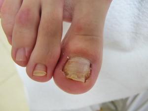 Вросший ноготь на ноге