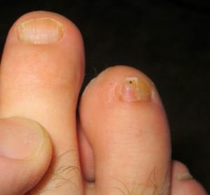 неровные ногти на больших пальцах
