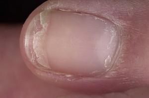 сильно слоятся ногти