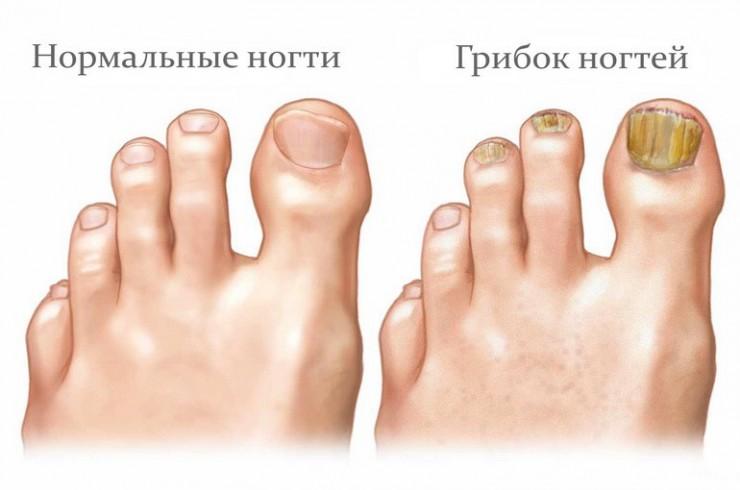 микостоп-крем-паста-для-ногтей-05