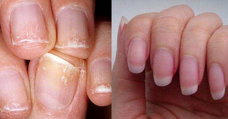 Повреждение ногтей после гель-лака